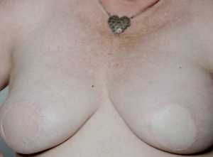 After Mastectomy Reconstruction and before my Tattoo's